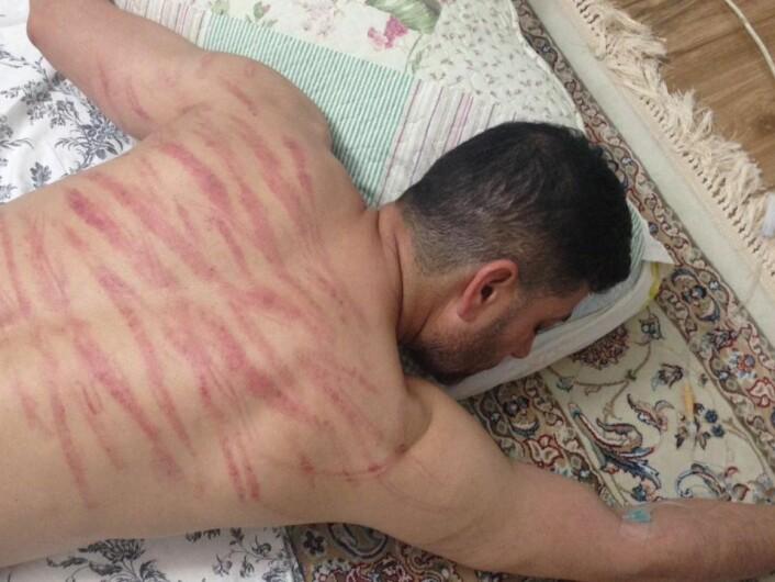 Sorab Abolfathi fotografert med tydelige merker på ryggen. 45-åringen forteller at han ble pisket og slått etter å ha blitt tvangssendt fra Norge til Iran. Foto: Privat