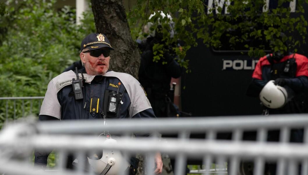 En politimann blør i ansiktet etter at det ble kastet stein fra motdemonstranter.