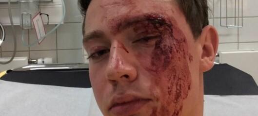 22 år gamle Edvin Eriksen ble skallet ned i sentrum på grunn av legningen sin