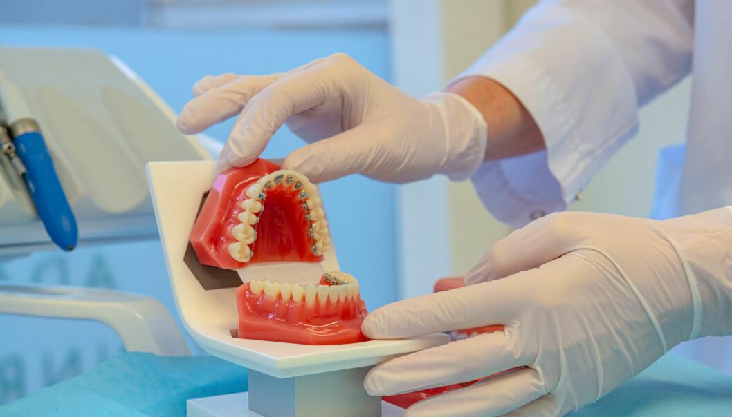Slik kan tannreguleringen plasseres, på innsiden, slik at den ikke blir så synlig.