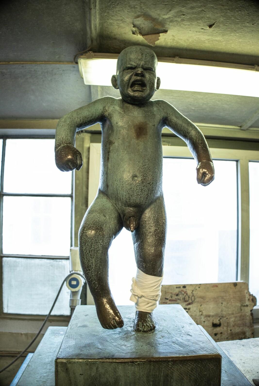 «Sinnataggen» i Vigelandsparken ble midlertidig fjernet etter at noen forsøkte å sage over den ene ankelen på skulpturen. Pasienten er på bedringens vei, opplyser Vigelands-museet.